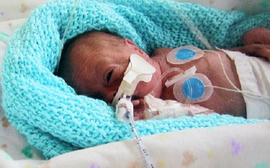 how to help parents with baby in nicu